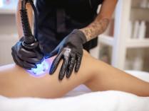 Sėdmenų pakėlimo, stangrinimo ir kojų liekninamoji, stangrinamoji ir anticeliulitinė procedūra